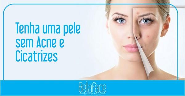 Tratamento Anti-Acne