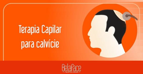 Terapia Capilar Calvície